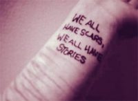Scars in Your Life Story - Heart Touching Stories of Mother and Son Love